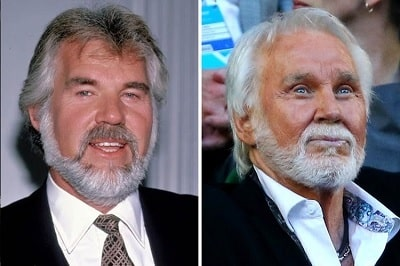 A picture of Kenny Rogers before (left) and after (right).