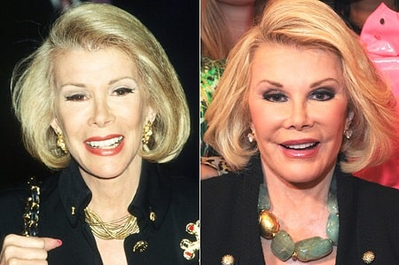 A picture of two different face types of Joan Rivers.