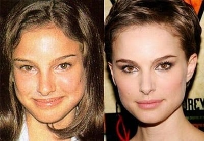 A picture of Natalie Portman before (left) and after (right).