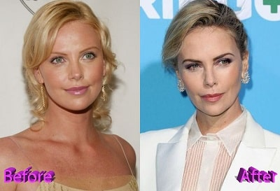 Charlize Theron Only Admits Dental Surgery Amid Plastic