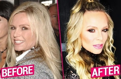 A picture of Tamra Judge before (left) and after (right) face lift.