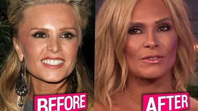 A picture of Tamra Judge before (left) and after (right) plastic surgeries.