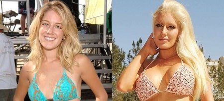 A picture of Tara Reid before (left) and after (right).