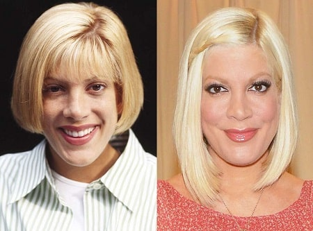 A picture of Tori Spelling from the past (left) looks shockingly different from the present (right).