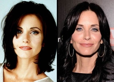 A picture of Courteney Cox before (left) and after (right) plastic surgeries.