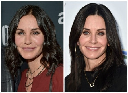 A picture of Courteney Cox before (left) and after (right) removing the fillers from her face.