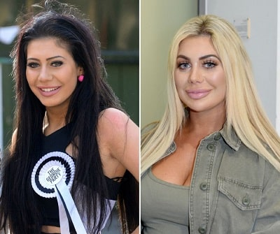 A picture of Chloe Ferry before (left) and after (right) plastic surgeries.
