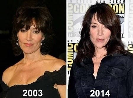 A before and after picture of Katey Sagal hinting the use of plastic surgeries.