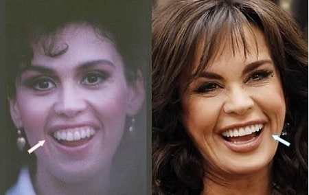 A before and after picture of Marie Osmond showing her changing gum line.