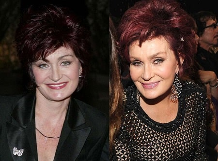 A picture of Sharon Osbourne before (left) and after (right).