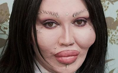 Pete Burns' Looks Like Disaster After Failed Plastic Surgeries